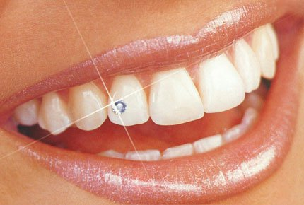 Чистка зубов цена акции