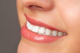 Отбеливание зубов по технологии PearlSmile со скидкой 62% в салоне «Жемчужный»